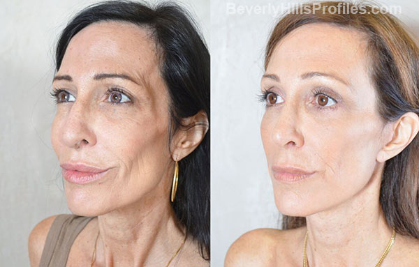Female before and after Facelift - oblique view