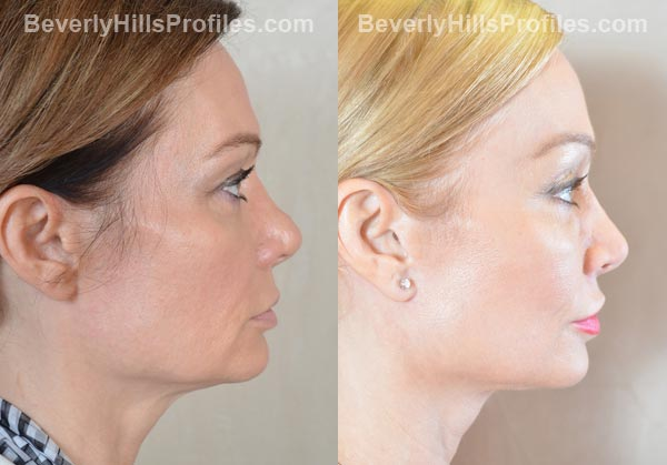 Female patient before and after Facelift - side view