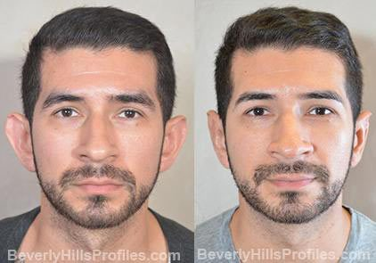 male patient before and after Otoplasty