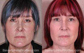 patient before and after Revision Nose Surgery