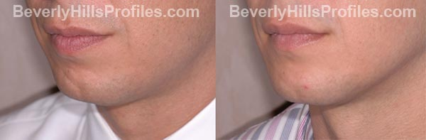 male patient before and after Chin Implants
