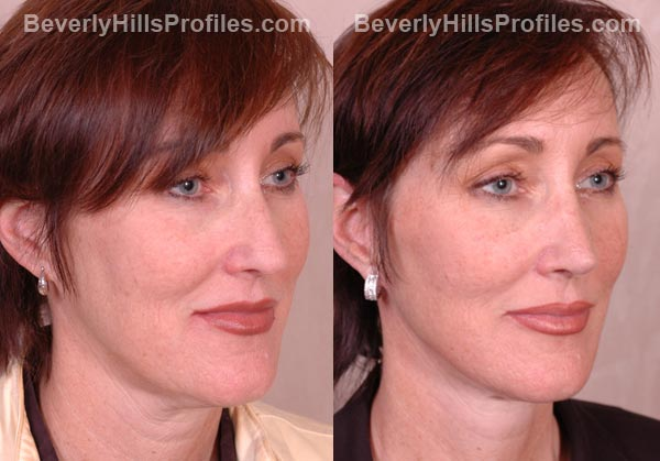 patient before and after Facelift - oblique view
