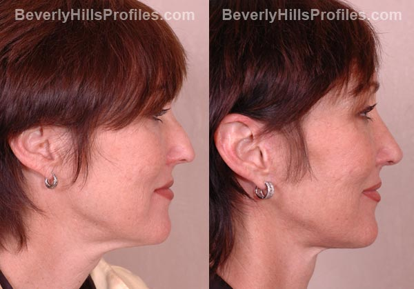patient before and after Facelift - side view