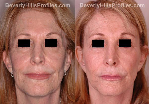 front view Female patient before and after Facelift