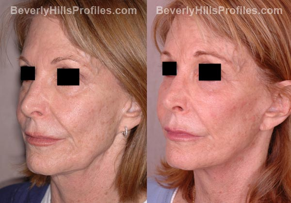 oblique view Female patient before and after Facelift
