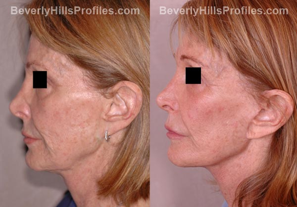 side view Female patient before and after Facelift