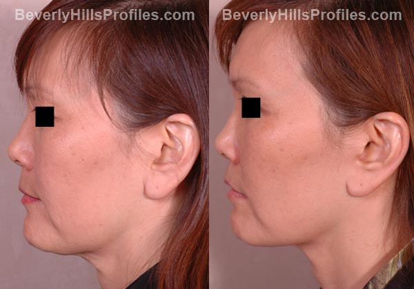 side view patient before and after Facelift