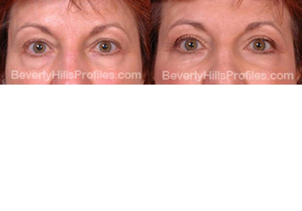 front view, before and after Facial Fat Transfer Procedures