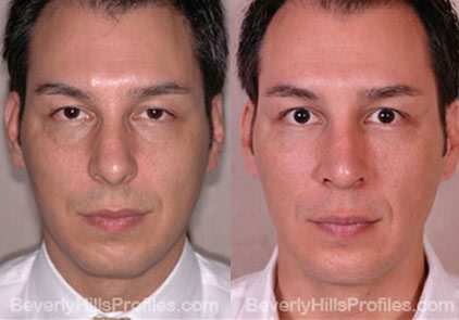 Male patient before and after Facial Fat Transfer - front view