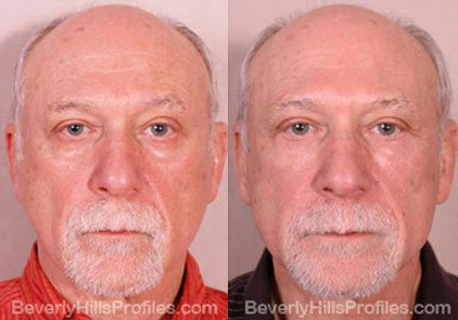 Male before and after Eyelid - front photos