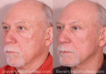 Male before and after Eyelid - oblique photos