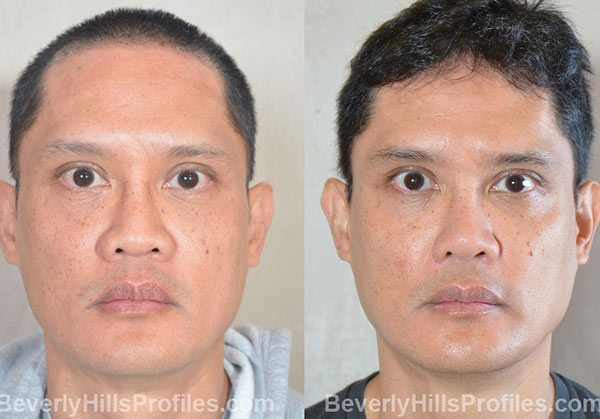 Male patient before and after Facial Fat Transfer, front view