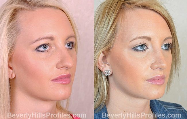 Female patient before and after Rhinoplasty - oblique view