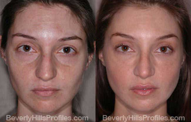 front photos - Female before and after Nose Job