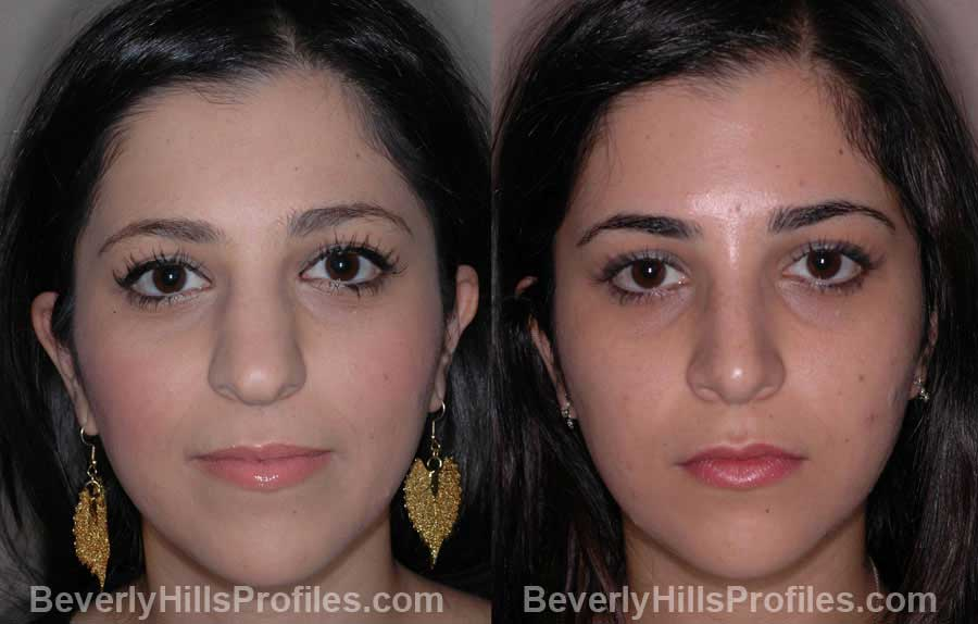 front view - Female before and after Nose Job