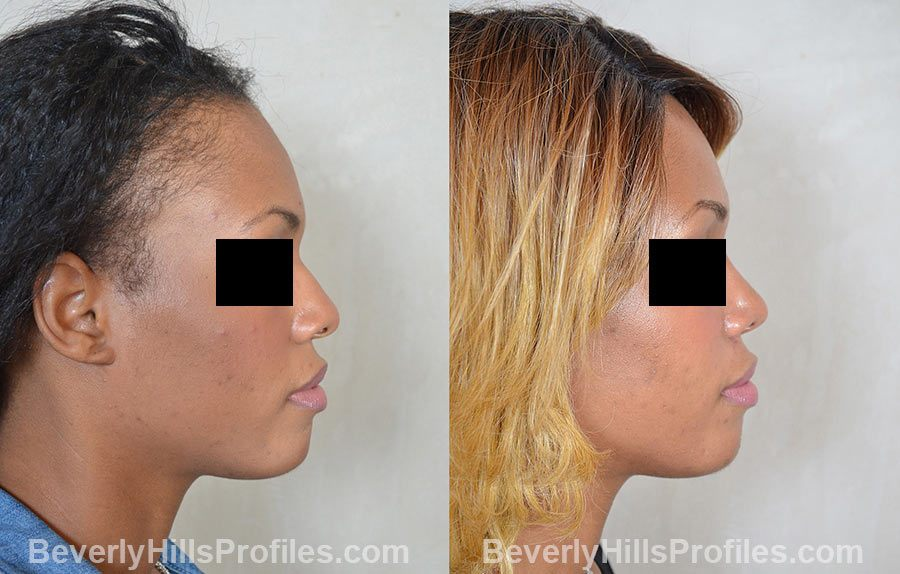 Female before and after Rhinoplasty, side view
