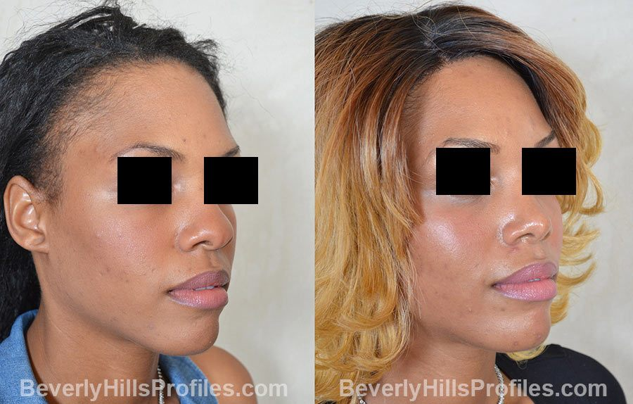 Female before and after Rhinoplasty, oblique view