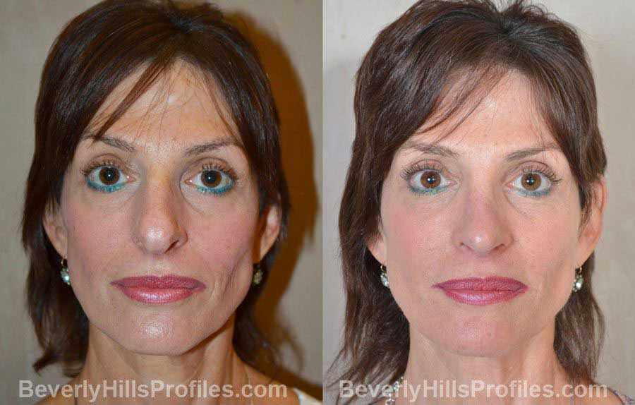 imgs Female before and after Nose Job, front view