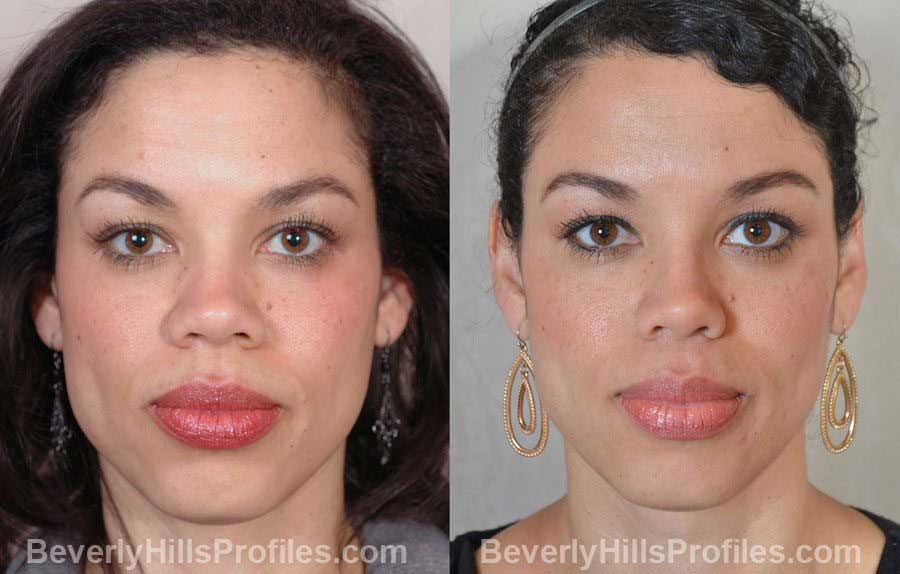 Female before and after Nose Surgery, front view