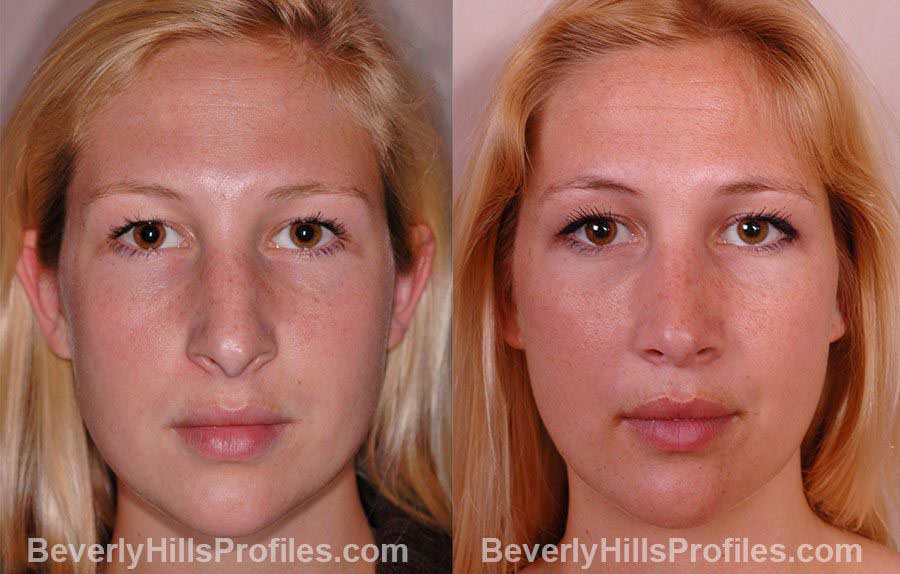 front view - Female patient before and after Rhinoplasty