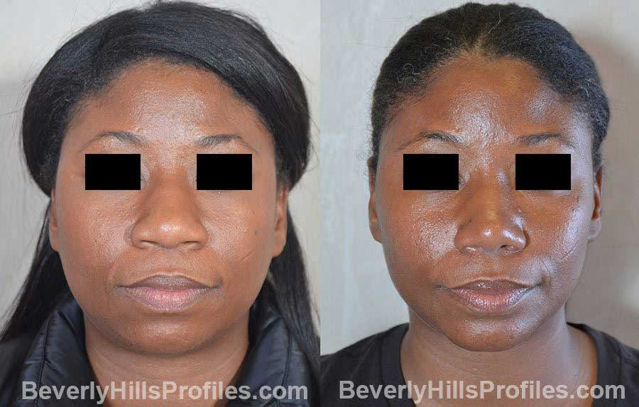 Female patient before and after Nose Surgery front view