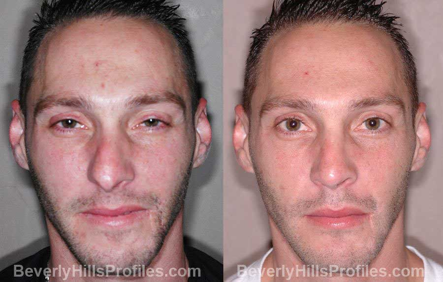 front view - Male before and after Nose Job