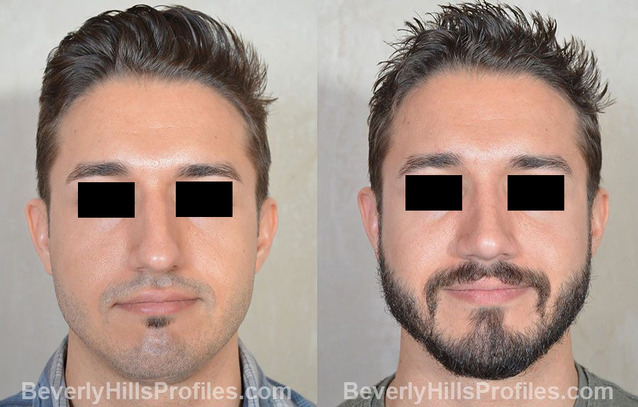 Male patient before and after Rhinoplasty, front view