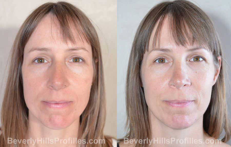 imgs Female before and after Nose Surgery - front view