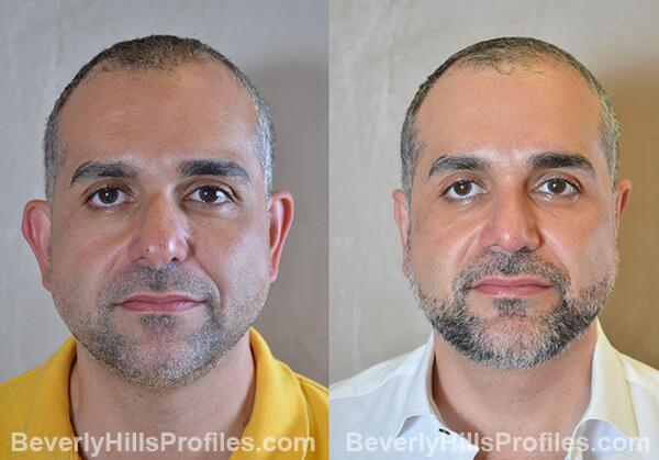 Male before and after Chin Implants - front photos