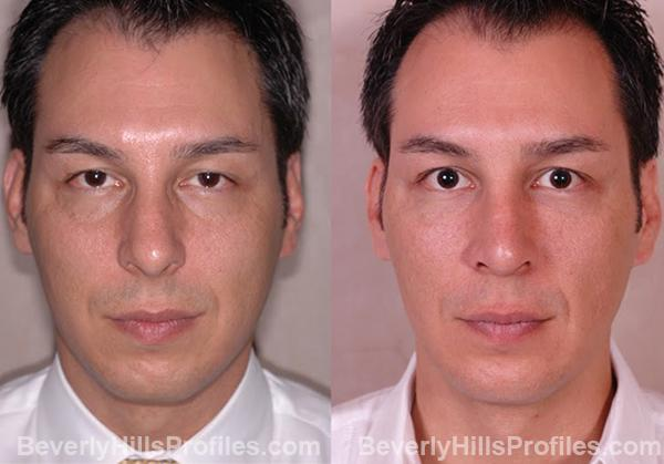 pics male patient before and after Chin Implants