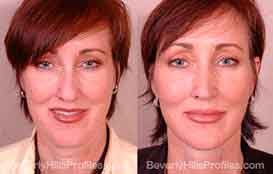 Photos Male patient before and after Facelift Surgery