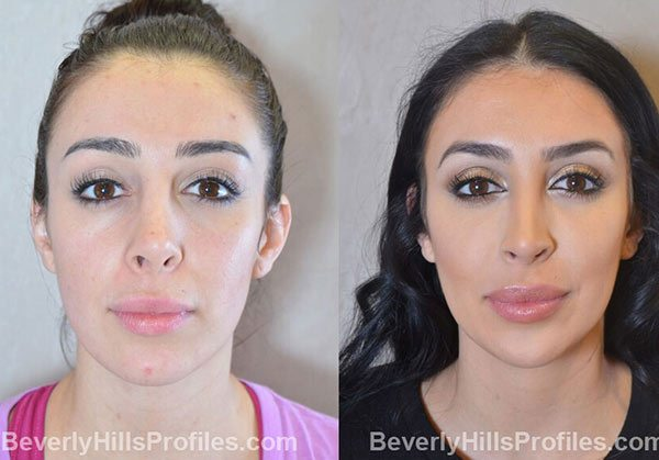 photos Female patient before and after Facial Fat Transfer, front view