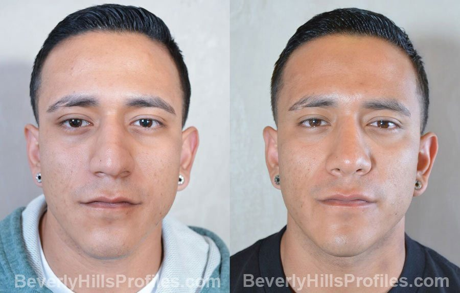 Male patient before and after Rhinoplasty - Photos