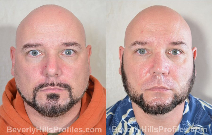 pics Male patient before and after Nose Surgery front view