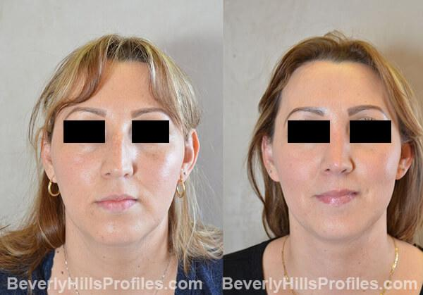 pics female patient before and after Necklift - front view