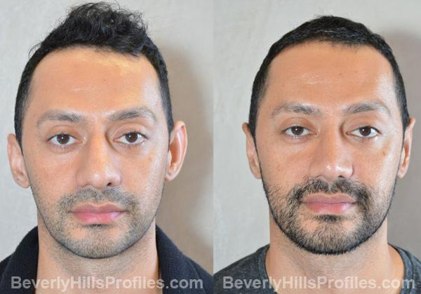 photos before and after Otoplasty Procedures