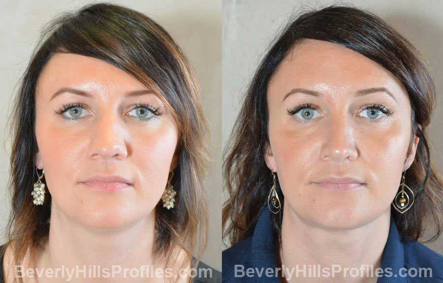 Female patient before and after Nose Surgery - front view