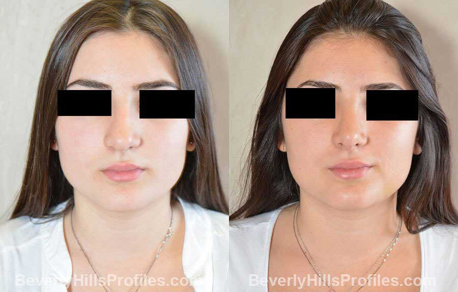 imgs Female patient before and after Nose Surgery front view