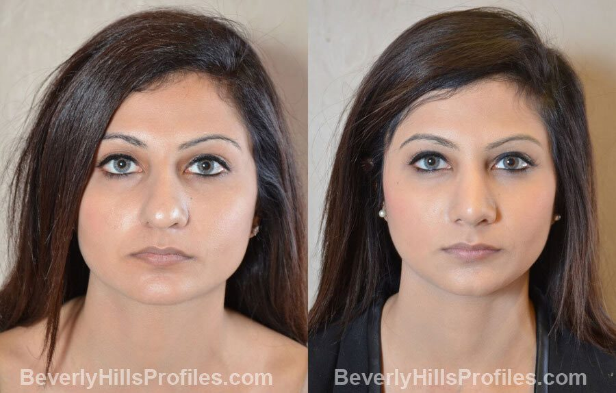 images Female patient before and after Nose Surgery Procedures - front view
