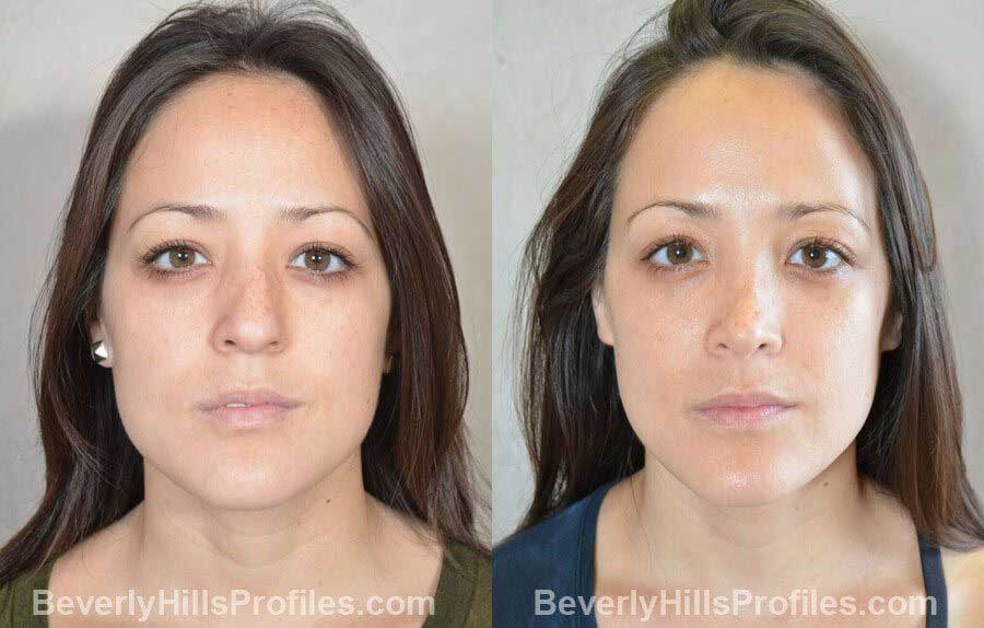 imgs Female patient before and after Nose Surgery Procedures, front view