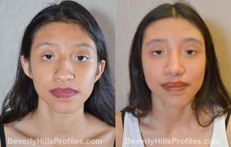 before and after Nose Surgery Procedures - front view