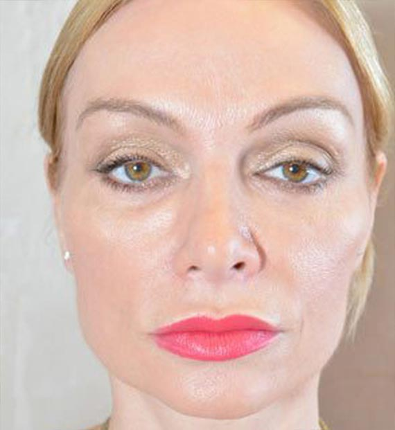 FaceLift - After Treatment Photo - female, front view, patient 5