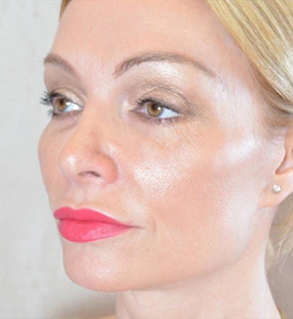 Blepharoplasty Procedure: After Treatment Photo - female, oblique view, patient 10