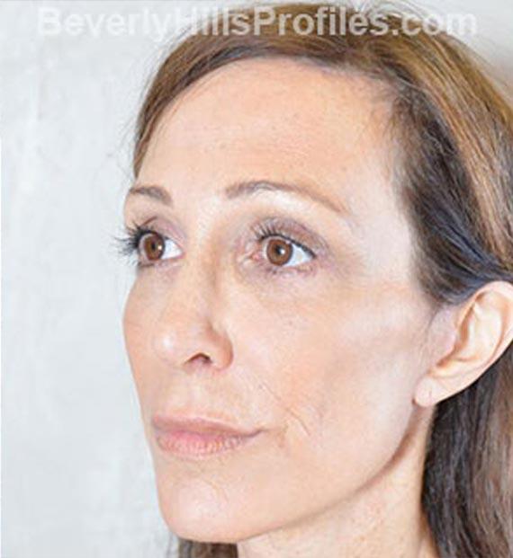 Brow lift - After Treatment Photo - female, oblique view, patient 1