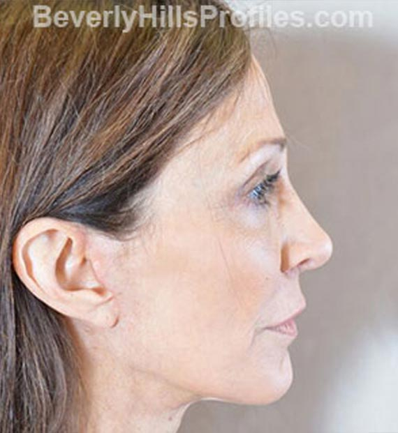 Brow lift - After Treatment Photo - female, right side view, patient 1