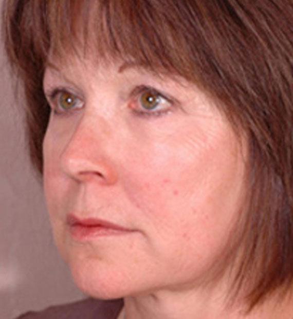 Brow lift - After Treatment Photo - female, oblique view, patient 2