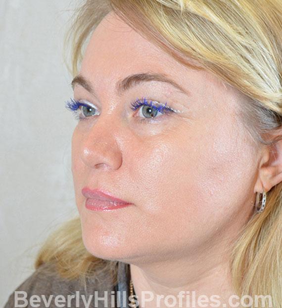 Brow lift - After Treatment Photo - female, oblique view, patient 5