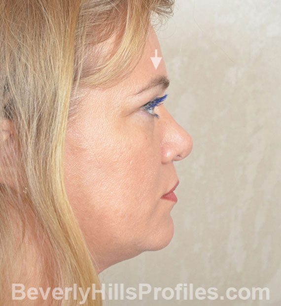 Brow lift - Before Treatment Photo - female, right side view, patient 5