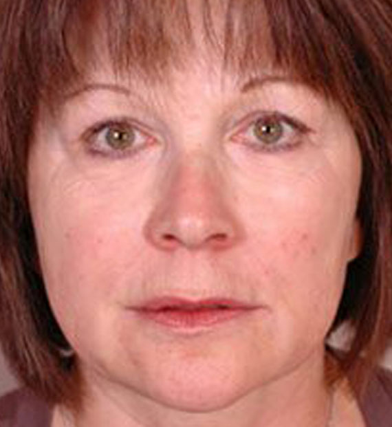 Brow lift - After Treatment Photo - female, front view, patient 2