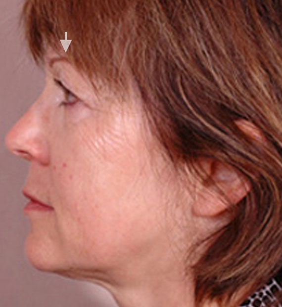 Brow lift - Before Treatment Photo - female, left side view, patient 2